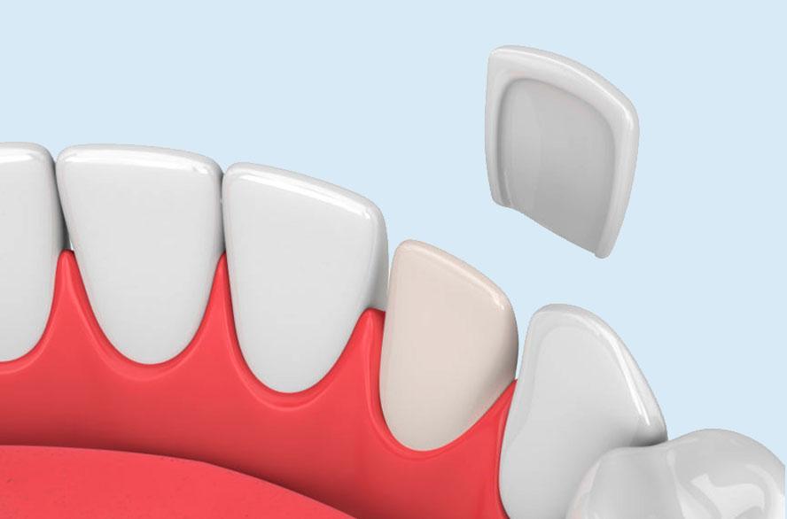 зубной винир