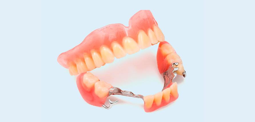 бюгельный протез челюсти