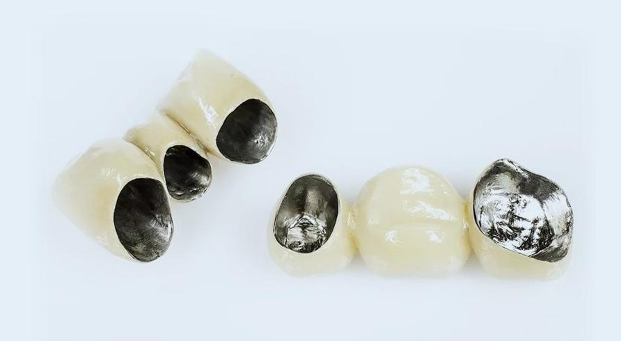 зубные коронки никель-хром