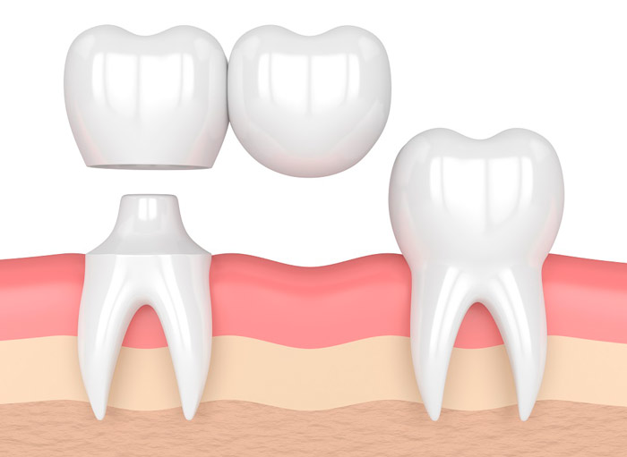 зубной мост