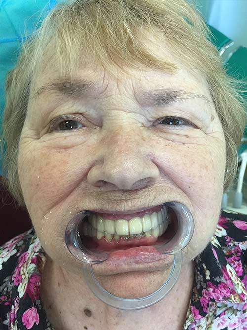 фото пациента стоматологии ченгши